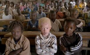 Un garçon albinos retrouvé démembré au Burundi
